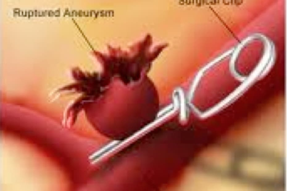 aneurismacerebral