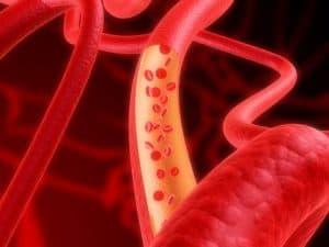 tratamento de varizes, vasinhos, veias varicosas, mas também artérias, aneurismas, estenoses, fístulas e outros