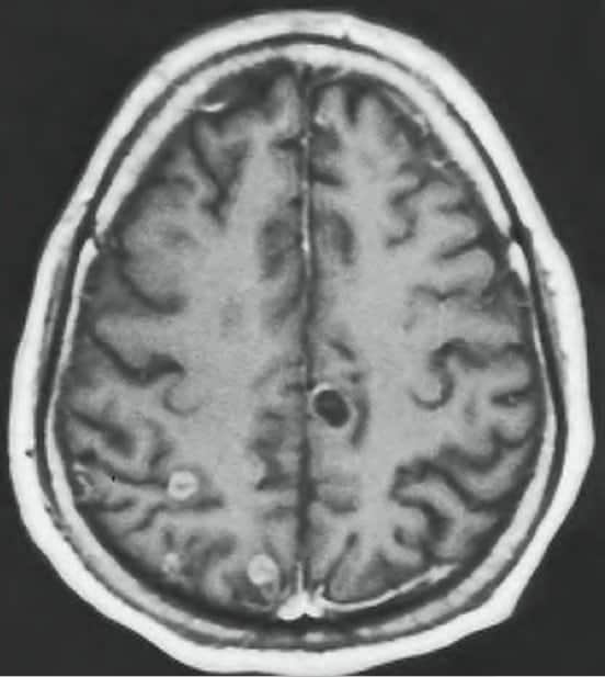 cistos-cerebrais-neurocisticercose-tratamento