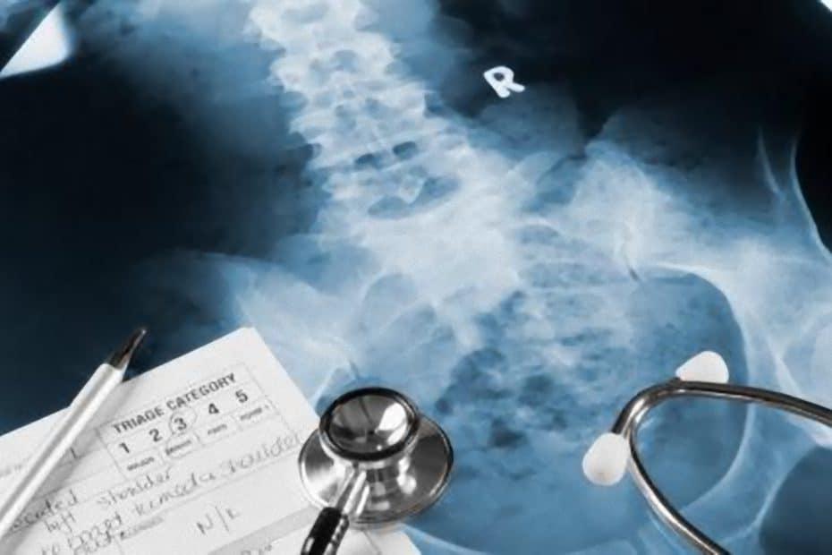 coluna-corpo-vertebral-hemangioma-tumor_e