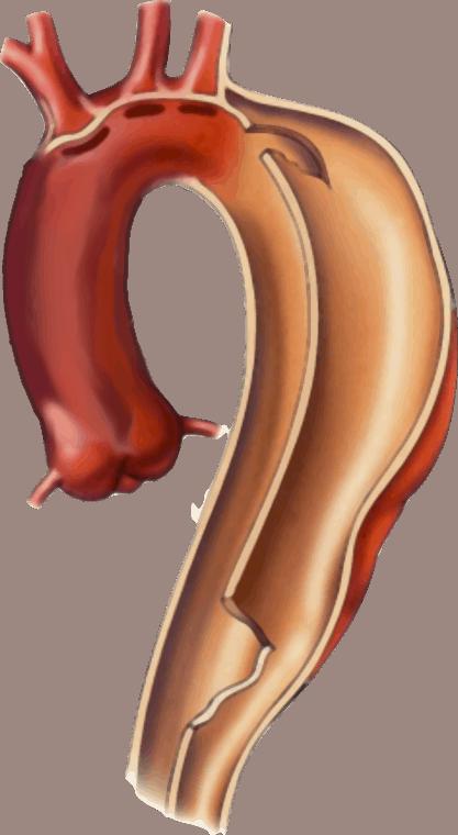 Dissecção aórtica, o que é isso?