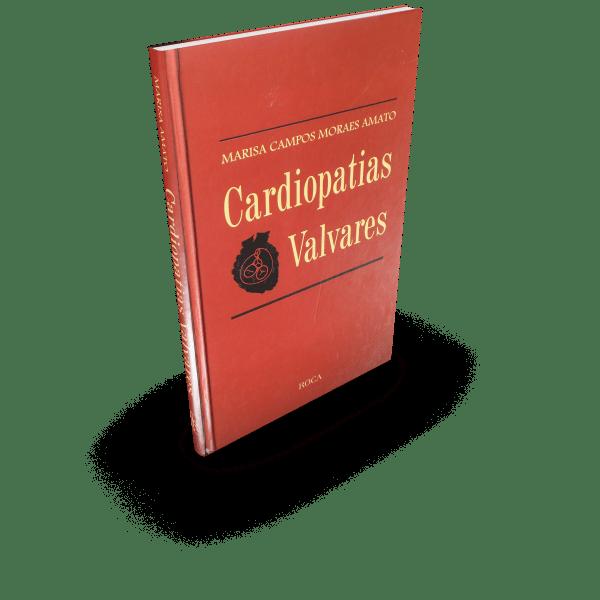 cardiopatias_valvares