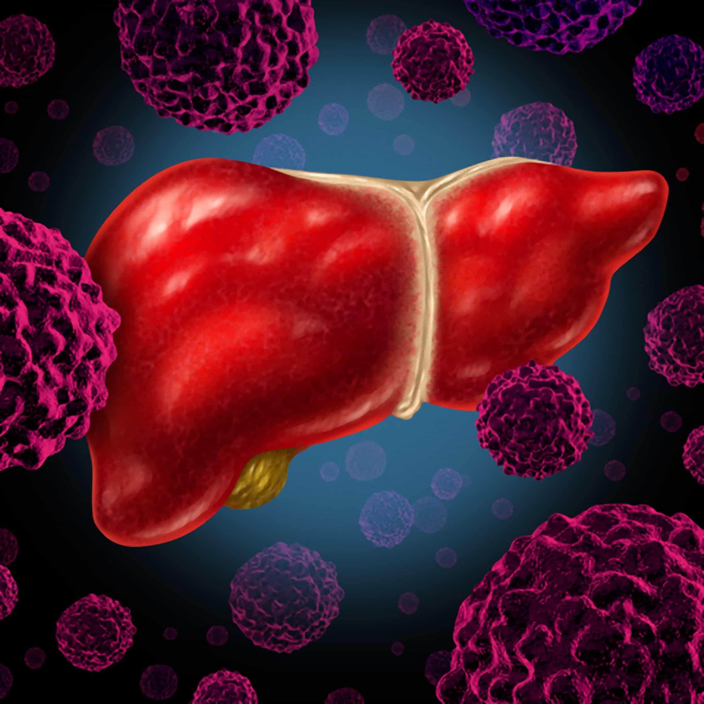 Tratamento para tumor no fígado: orientações para quimioembolização