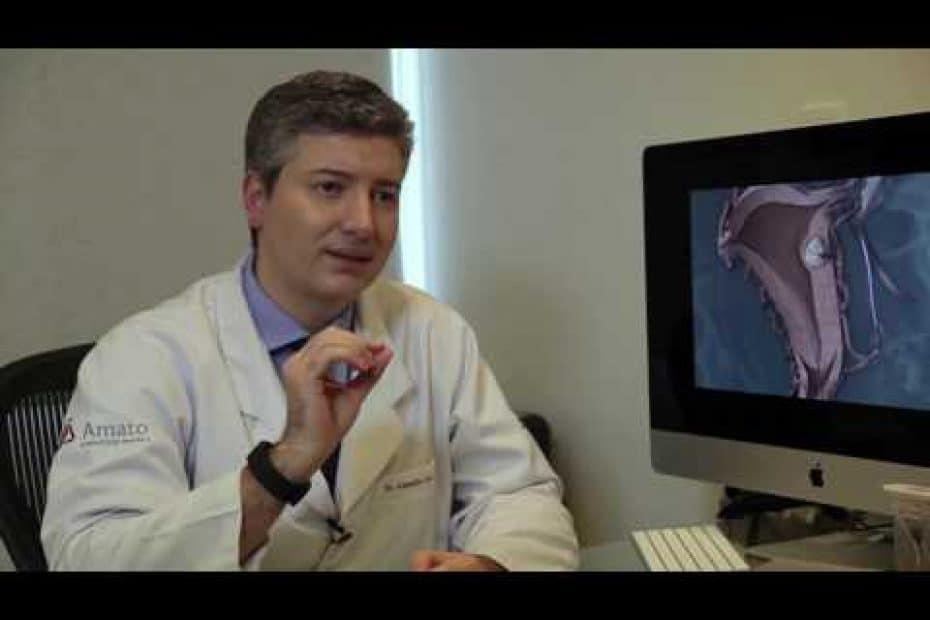 Embolização de mioma