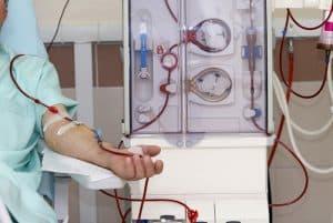 fistula_arteriovenosa_hemodialise_vascular_sao_paulo
