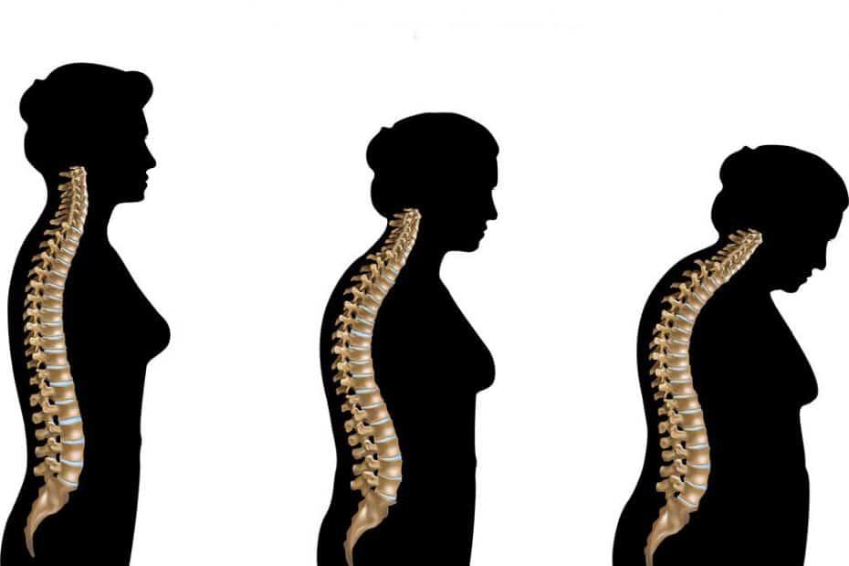 osteoporose-idade-osso-fraco