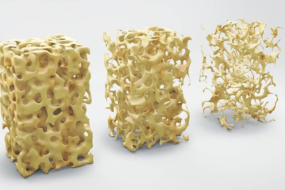 osteoporose-osso-fraco