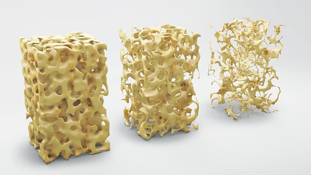 Osteoporose: fratura geralmente é o primeiro sinal da doença