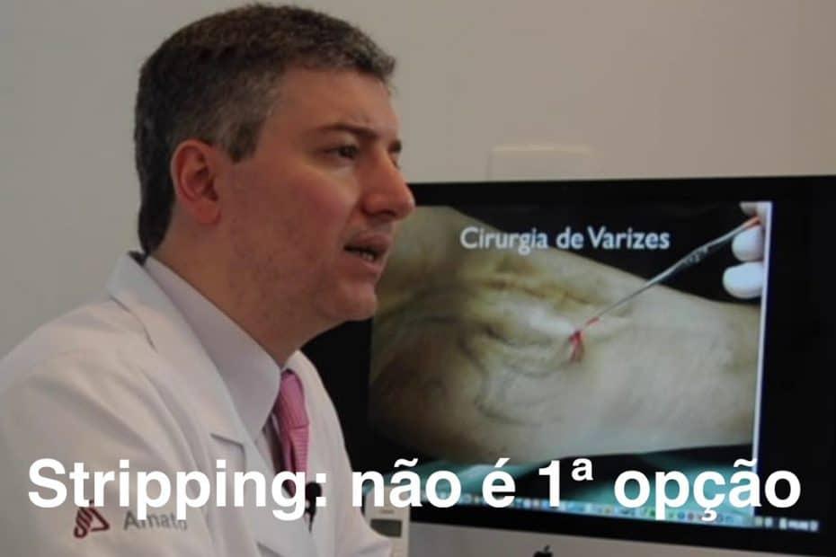 cirurgia-de-varizes
