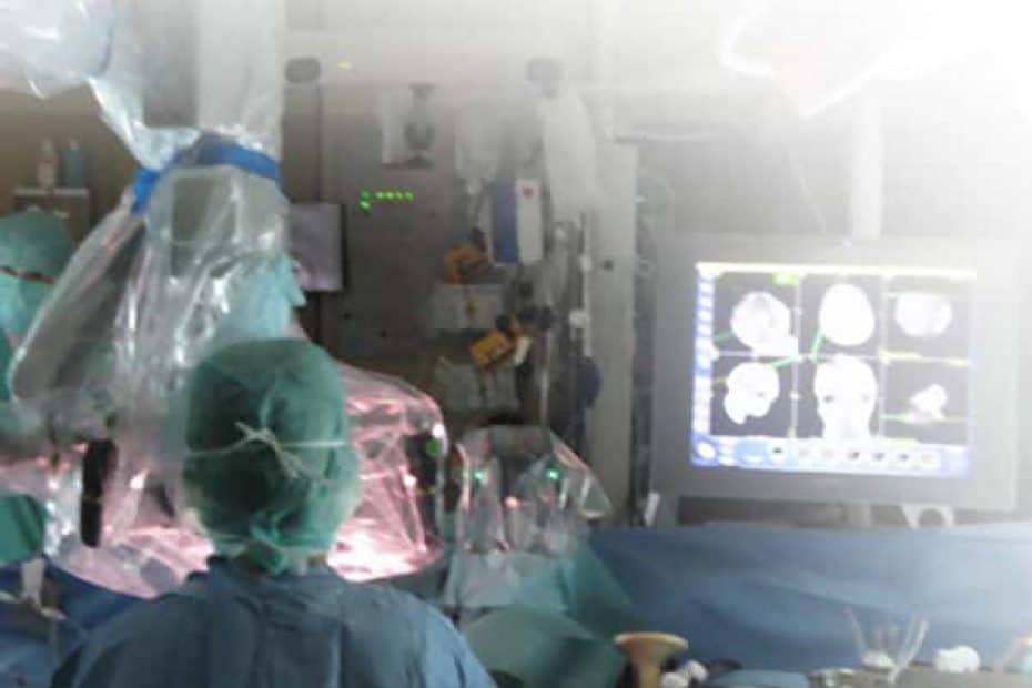 meningioma-cirurgia_e