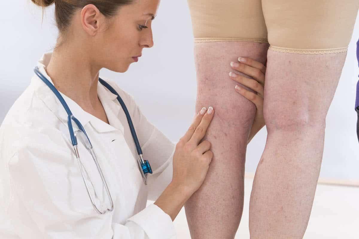 Tipos de tratamentos de varizes