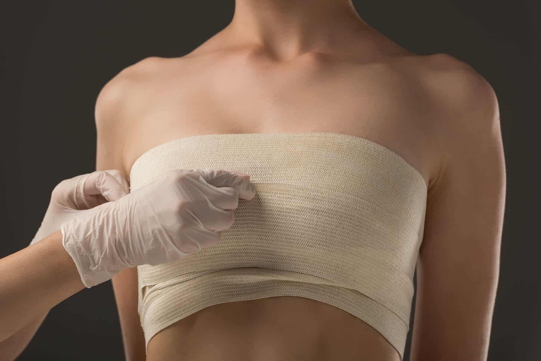 Retirada de silicone das mamas